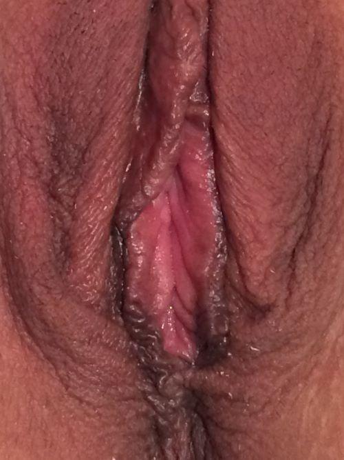 Sharon: Pre- and post-op vaginal reconstruction (PP + VP) plus linear labiaplasty