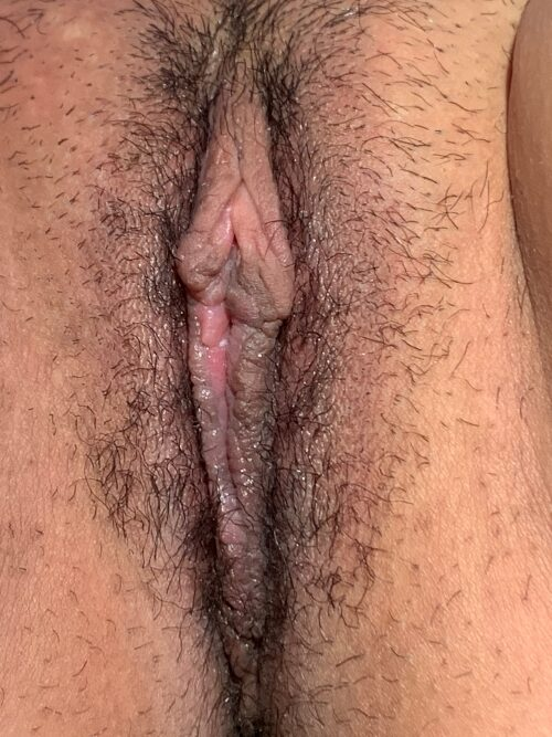 24 y/o, labia minora reduction using the Linear technique
