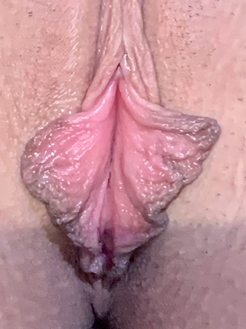 18-24 year old treated with Labiaplasty