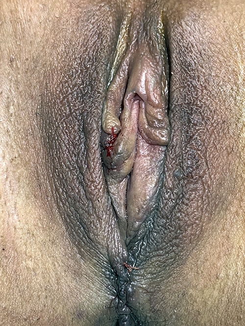 35-44 year old woman with Vaginoplasty